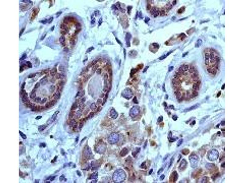 Immunohistochemistry (IHC) image for anti-PI3 Kinase P85 alpha (C-Term) antibody (ABIN189672)
