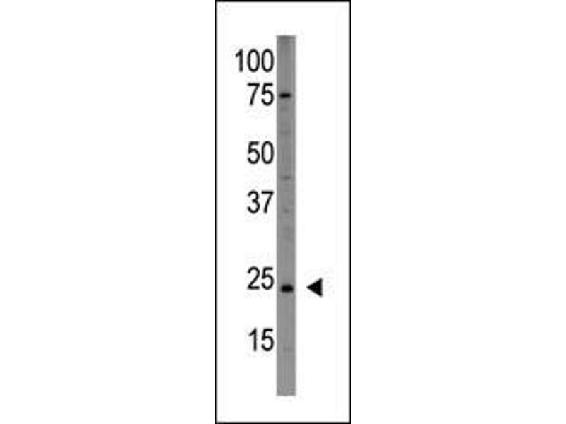 Western Blotting (WB) image for anti-PDGFA antibody (Platelet-Derived Growth Factor alpha Polypeptide) (AA 60-89) (ABIN388459)
