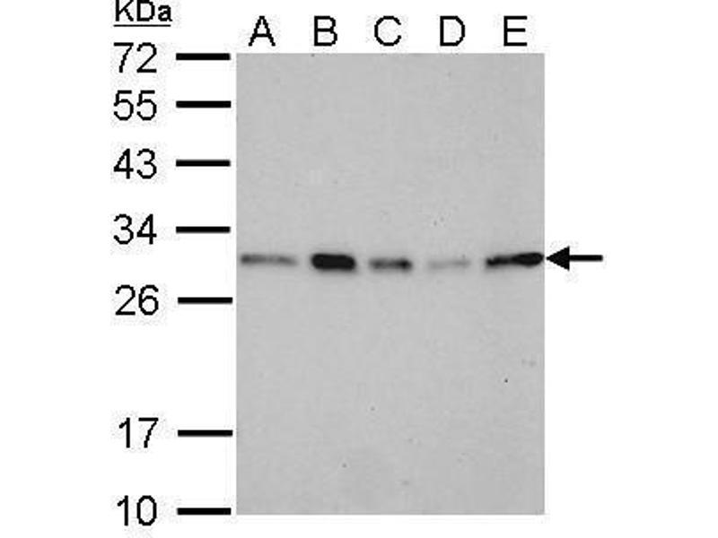 Western Blotting (WB) image for anti-Stratifin Antikörper (SFN) (Center) (ABIN2854867)
