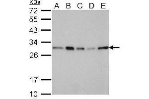 Western Blotting (WB) image for anti-Stratifin (SFN) (Center) antibody (ABIN2854867)