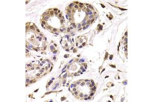 Image no. 2 for anti-BRCA1 Associated Protein-1 (Ubiquitin Carboxy-terminal Hydrolase) (BAP1) antibody (ABIN2561329)