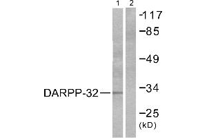 Image no. 2 for anti-Protein Phosphatase 1, Regulatory (Inhibitor) Subunit 1B (PPP1R1B) (Thr75) antibody (ABIN1576023)