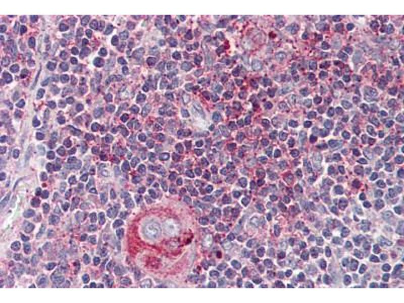 Image no. 2 for anti-Wingless-Type MMTV Integration Site Family, Member 5B (WNT5B) (Internal Region) antibody (ABIN461700)