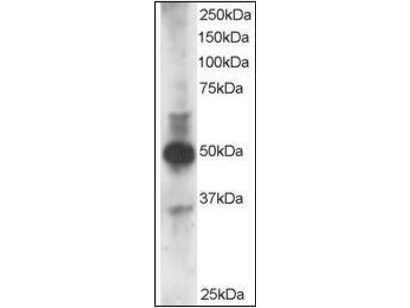 Western Blotting (WB) image for anti-GATA Binding Protein 3 (GATA3) (N-Term) antibody (ABIN615854)