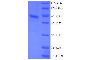 Image no. 1 for Serum Amyloid A (SAA) (AA 19-129) protein (His-GST) (ABIN5710308)