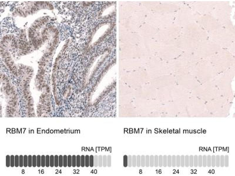 Immunohistochemistry (Paraffin-embedded Sections) (IHC (p)) image for anti-RNA Binding Motif Protein 7 (RBM7) antibody (ABIN4349639)