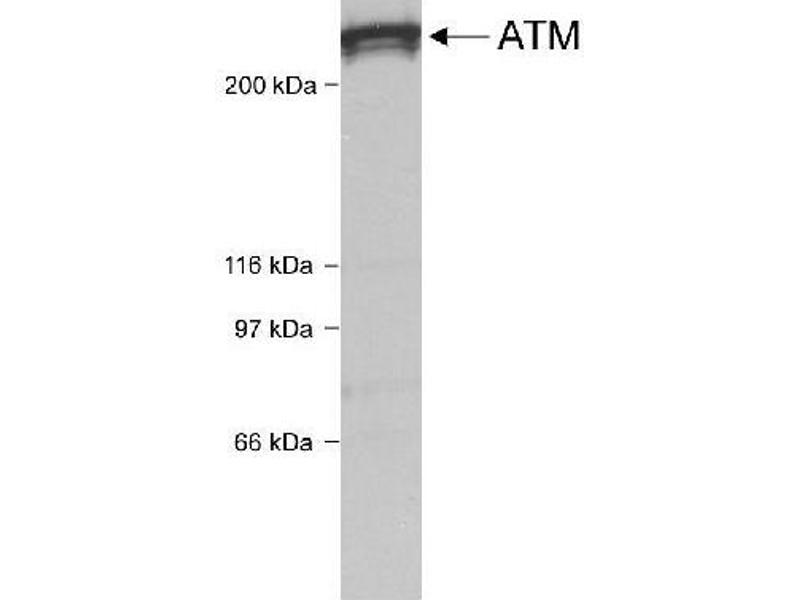 Western Blotting (WB) image for anti-Ataxia Telangiectasia Mutated (ATM) (C-Term) antibody (ABIN151030)