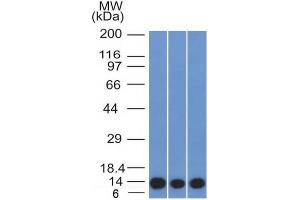 Image no. 1 for anti-S100 Calcium Binding Protein A4 (S100A4) (AA 1-200) antibody (ABIN6940541)
