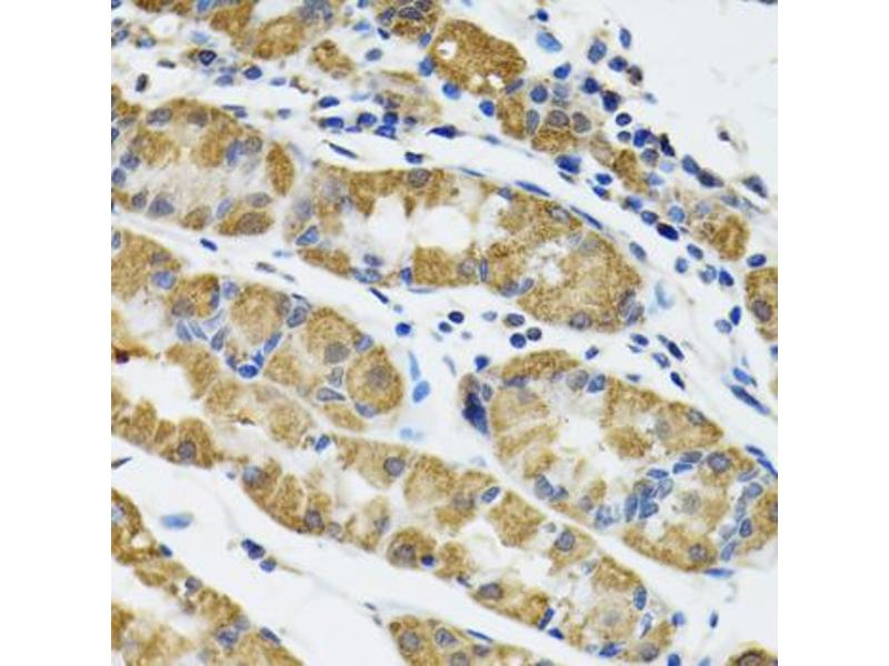 Image no. 2 for anti-Hyaluronan and Proteoglycan Link Protein 1 (HAPLN1) antibody (ABIN2563005)