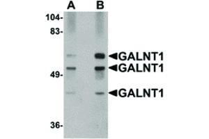 Image no. 1 for anti-UDP-N-Acetyl-alpha-D-Galactosamine:polypeptide N-Acetylgalactosaminyltransferase 10 (GalNAc-T10) (GALNT10) (N-Term) antibody (ABIN6657271)