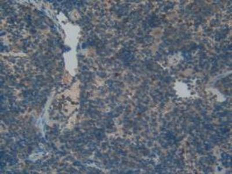 Immunohistochemistry (IHC) image for anti-Fibroblast Growth Factor Receptor-Like 1 (FGFRL1) (AA 164-368) antibody (ABIN1858883)