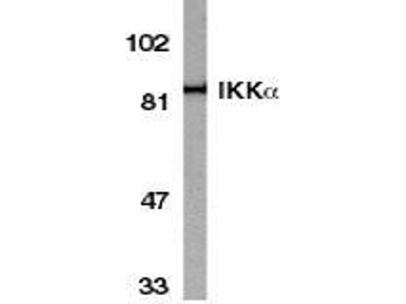 Western Blotting (WB) image for anti-CHUK antibody (conserved Helix-Loop-Helix Ubiquitous Kinase) (C-Term) (ABIN499966)