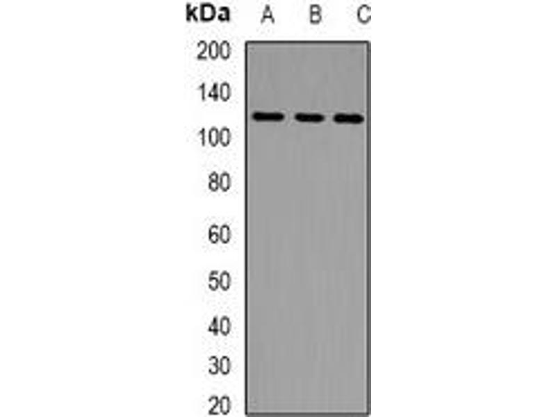Western Blotting (WB) image for anti-Lethal Giant Larvae Homolog 2 (Drosophila) (LLGL2) antibody (ABIN2966779)