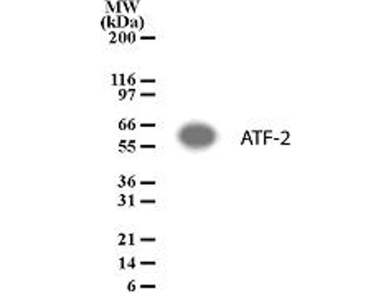 Western Blotting (WB) image for anti-ATF2 antibody (Activating Transcription Factor 2) (ABIN123294)