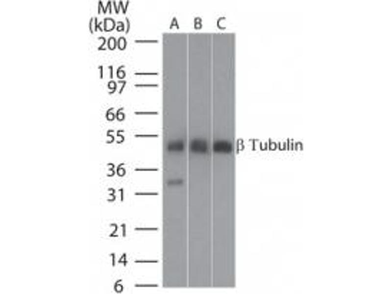 Western Blotting (WB) image for anti-Tubulin, beta (TUBB) antibody (ABIN252426)