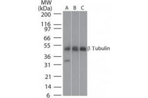 Western Blotting (WB) image for anti-TUBB antibody (Tubulin, beta) (ABIN252426)
