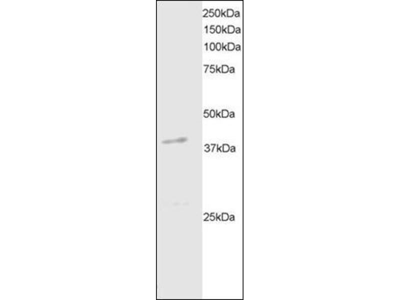 Western Blotting (WB) image for anti-Death-Associated Protein Kinase 2 (DAPK2) (C-Term) antibody (ABIN614964)