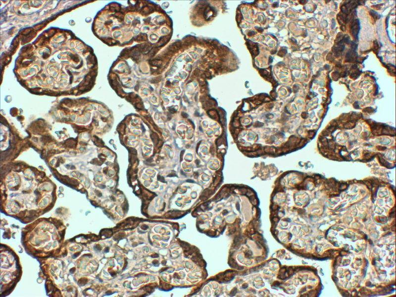 Immunohistochemistry (Paraffin-embedded Sections) (IHC (p)) image for anti-serpin Peptidase Inhibitor, Clade E (Nexin, Plasminogen Activator Inhibitor Type 1), Member 1 (SERPINE1) (Internal Region) antibody (ABIN2564364)
