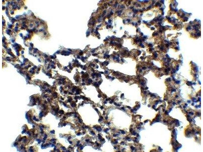 Immunohistochemistry (IHC) image for anti-Eukaryotic Translation Initiation Factor 2-alpha Kinase 2 (EIF2AK2) (all Isoforms) antibody (ABIN4345932)
