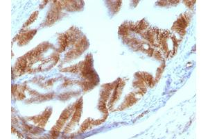 Image no. 6 for anti-Epithelial Cell Adhesion Molecule (EPCAM) (AA 280-350), (Cytoplasmic Domain) antibody (ABIN6939974)