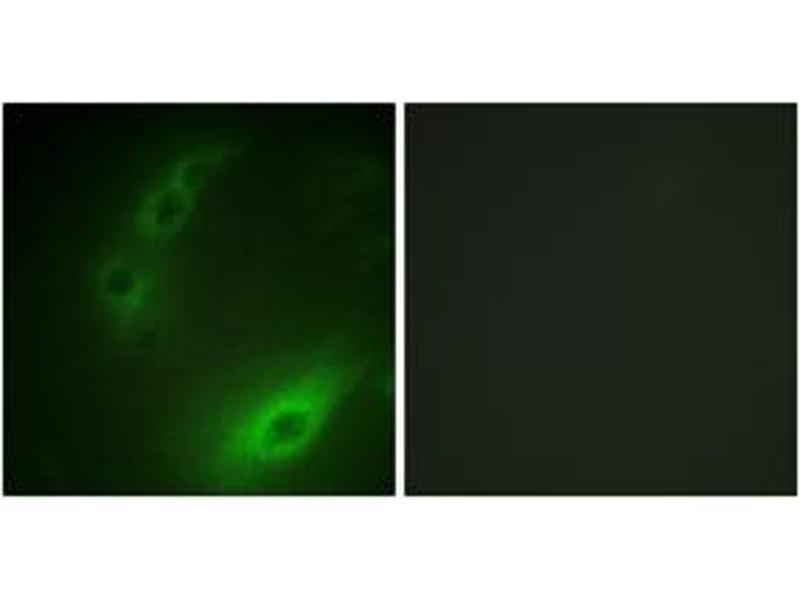 Immunofluorescence (IF) image for anti-Forkhead Box O1 (FOXO1) (AA 295-344) antibody (ABIN1532340)