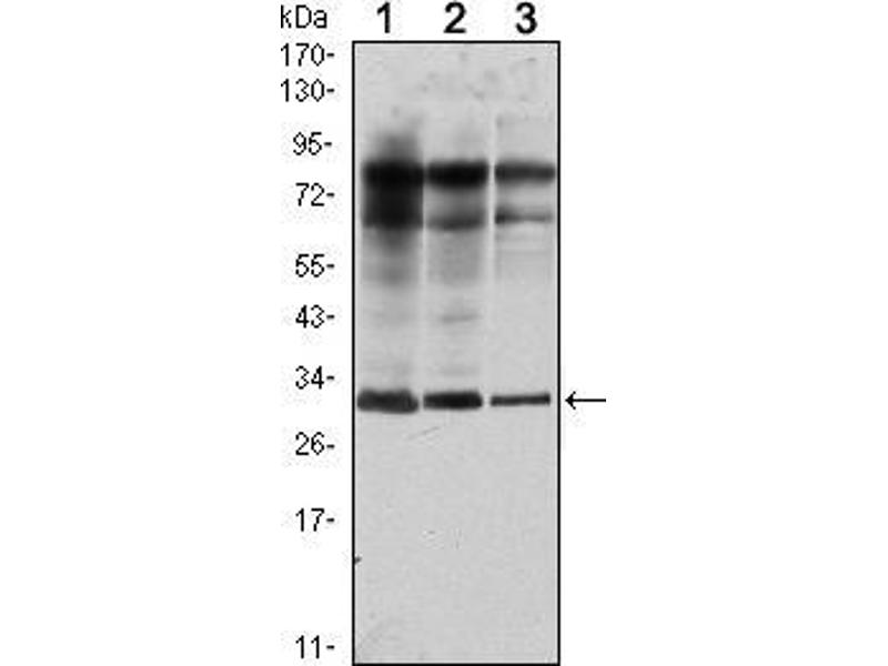 Western Blotting (WB) image for anti-RAB25 antibody (RAB25, Member RAS Oncogene Family) (ABIN969377)