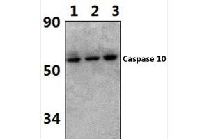 Western Blotting (WB) image for anti-Caspase 10 antibody (Caspase 10, Apoptosis-Related Cysteine Peptidase) (ABIN407612)