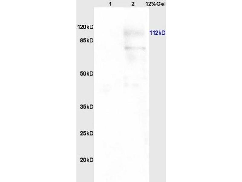 SDS-PAGE (SDS) image for anti-PARP1 Antikörper (Poly (ADP-Ribose) Polymerase 1) (AA 200-230) (ABIN677903)