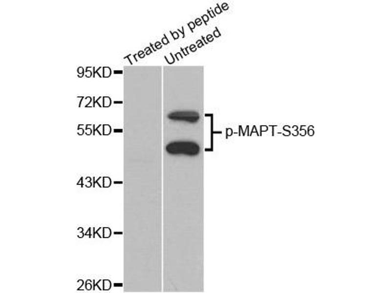 Western Blotting (WB) image for anti-MAPT antibody (Microtubule-Associated Protein tau) (pSer356) (ABIN1870395)