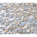 Immunohistochemistry of Human esophagus cancer using CD44 Polyclonal Antibody at dilution of 1:25