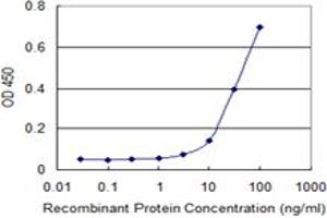 Image no. 2 for anti-S100 Calcium Binding Protein A5 (S100A5) (AA 1-91) antibody (ABIN598911)