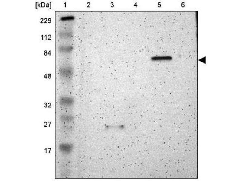 Western Blotting (WB) image for anti-SHC (Src Homology 2 Domain Containing) Transforming Protein 2 (SHC2) antibody (ABIN4353346)