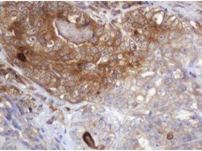 Immunohistochemistry (IHC) image for anti-ARPC5 antibody (Actin Related Protein 2/3 Complex, Subunit 5, 16kDa) (ABIN4281696)