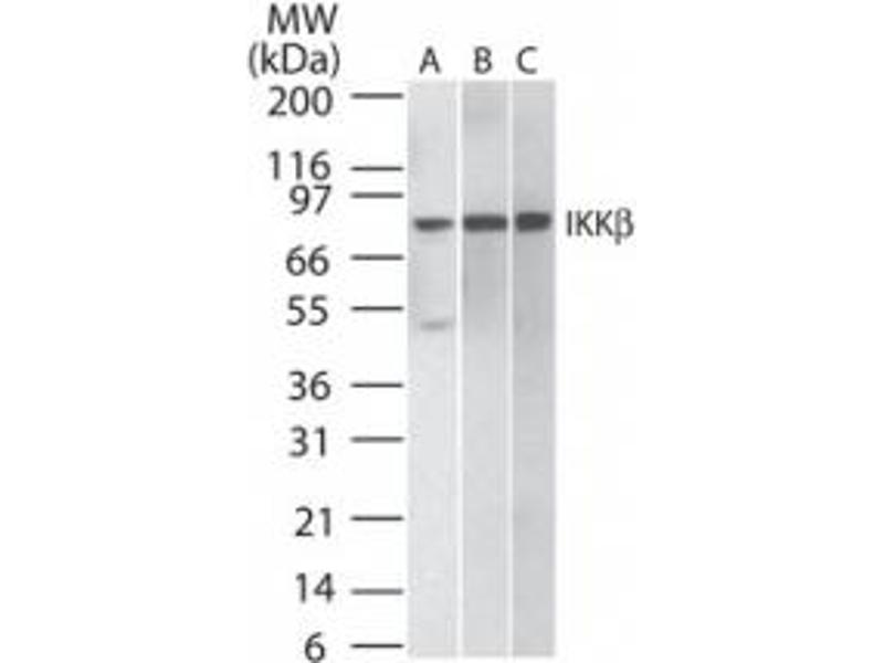 Western Blotting (WB) image for anti-IKBKB antibody (Inhibitor of kappa Light Polypeptide Gene Enhancer in B-Cells, Kinase beta) (ABIN252473)