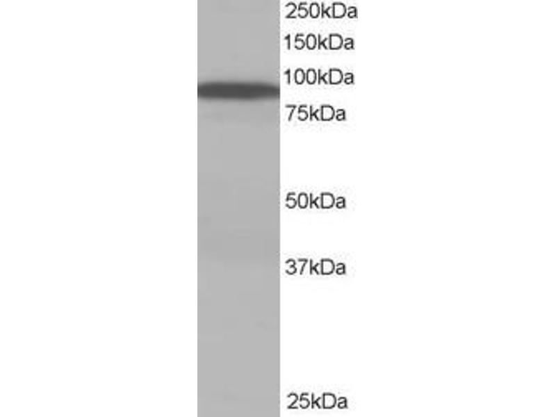 Western Blotting (WB) image for anti-vps35 antibody (Vacuolar Protein Sorting 35 Homolog (S. Cerevisiae)) (C-Term) (ABIN185182)