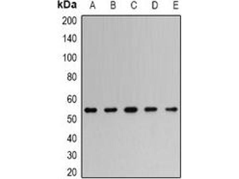 Western Blotting (WB) image for anti-TNF Receptor-Associated Factor 2 (TRAF2) antibody (ABIN3198353)