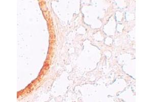 Immunohistochemistry (IHC) image for anti-Solute Carrier Family 39 (Zinc Transporter), Member 3 (SLC39A3) (Middle Region) antibody (ABIN1031179)
