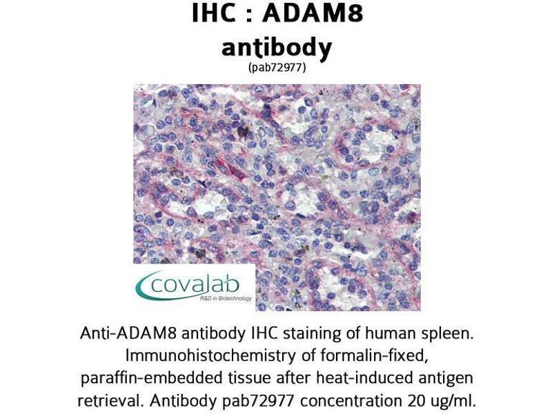 Image no. 3 for anti-ADAM Metallopeptidase Domain 8 (ADAM8) (AA 763-824) antibody (ABIN1731521)