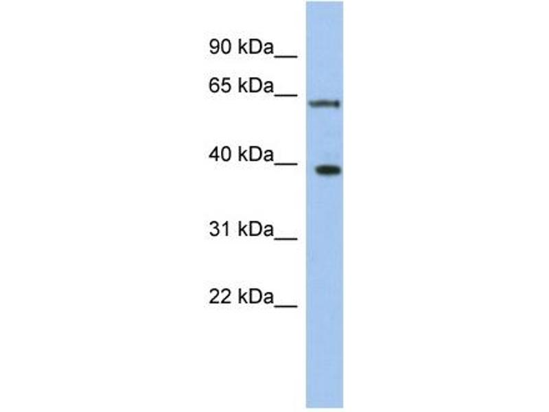 Western Blotting (WB) image for anti-DEAD (Asp-Glu-Ala-Asp) Box Polypeptide 3, X-Linked (DDX3X) (N-Term) antibody (ABIN2775180)