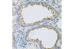 Image no. 2 for anti-Adaptor-Related Protein Complex 2, beta 1 Subunit (AP2B1) antibody (ABIN3015810)