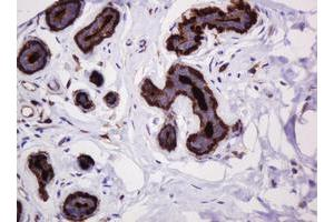 Image no. 6 for anti-Mucin 1, Cell Surface Associated (MUC1) antibody (ABIN1499598)