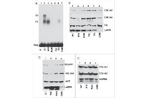 Image no. 21 for anti-Collagen, Type I (COL1) antibody (ABIN5596819)