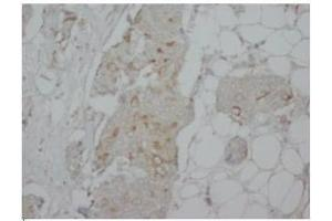 Immunohistochemistry (Paraffin-embedded Sections) (IHC (p)) image for anti-CASP8 and FADD-Like Apoptosis Regulator (CFLAR) (C-Term), (long form) antibody (ABIN1106673)