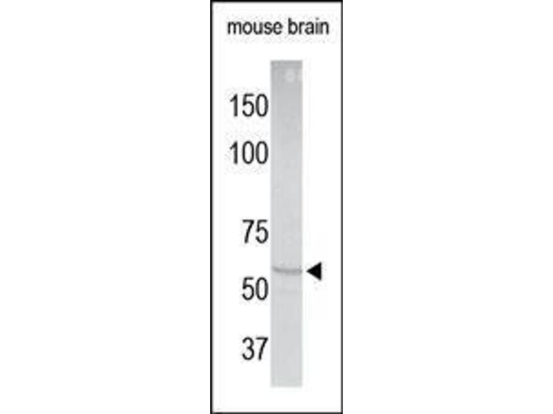 Western Blotting (WB) image for anti-Angiotensinogen (serpin Peptidase Inhibitor, Clade A, Member 8) (AGT) (N-Term) antibody (ABIN1583980)