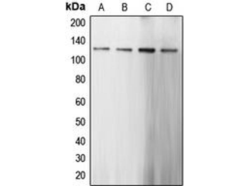 Image no. 3 for anti-Caspase Recruitment Domain Family, Member 6 (CARD6) (N-Term) antibody (ABIN2707387)