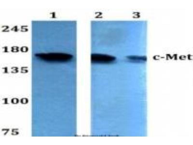 Western Blotting (WB) image for anti-Met Proto-Oncogene (MET) antibody (ABIN446810)