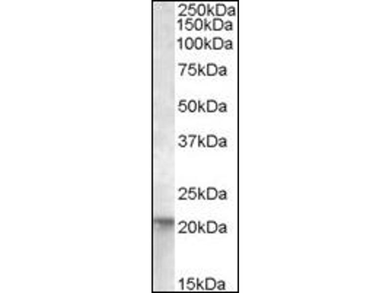image for anti-GTPase NRas (NRAS) (Internal Region) antibody (ABIN372821)