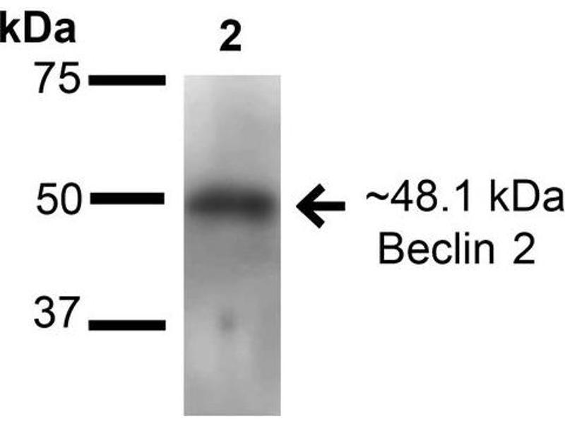 Image no. 2 for anti-Beclin-1-Like Protein 1 (BECN1L1) antibody (Streptavidin) (ABIN2868791)