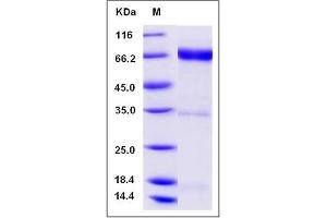 image for Neuregulin 1 (NRG1) (N-Term), (AA 2-246) (Active) protein (Fc Tag,ECD) (ABIN2004420)