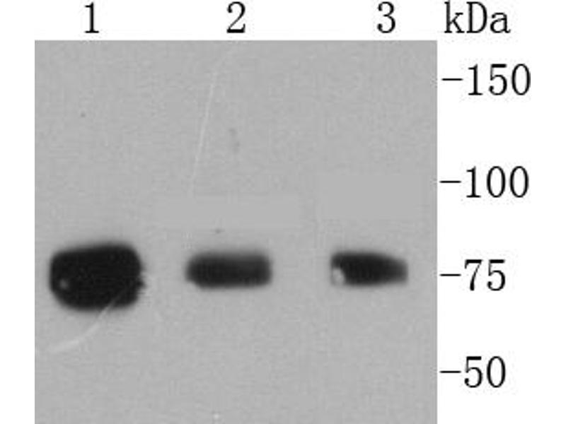 Western Blotting (WB) image for anti-Ribosomal Protein S6 Kinase, 90kDa, Polypeptide 1 (RPS6KA1) (pSer363), (pThr359) antibody (ABIN5557523)